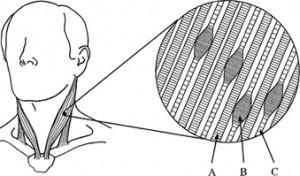 Trigger Points in Spieren