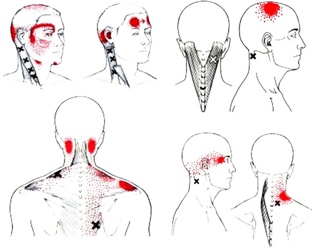 Triggerpoints & Hoofdpijn